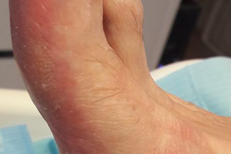 huidproblemen.jpg